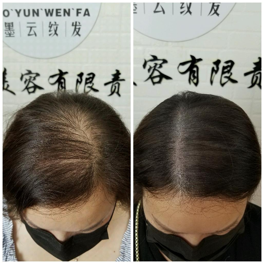 纹发联系方式