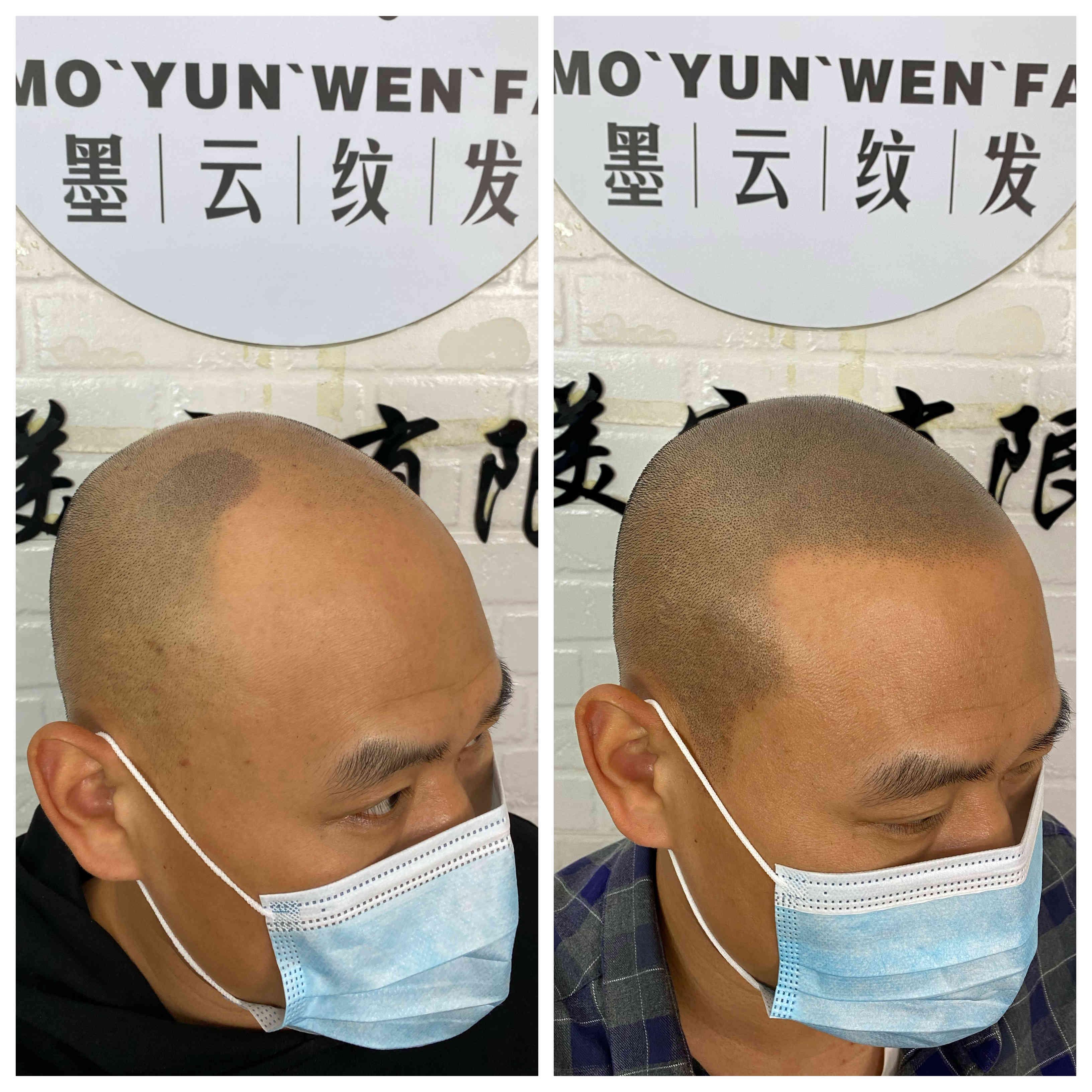 纹发好还是植发好哪里好