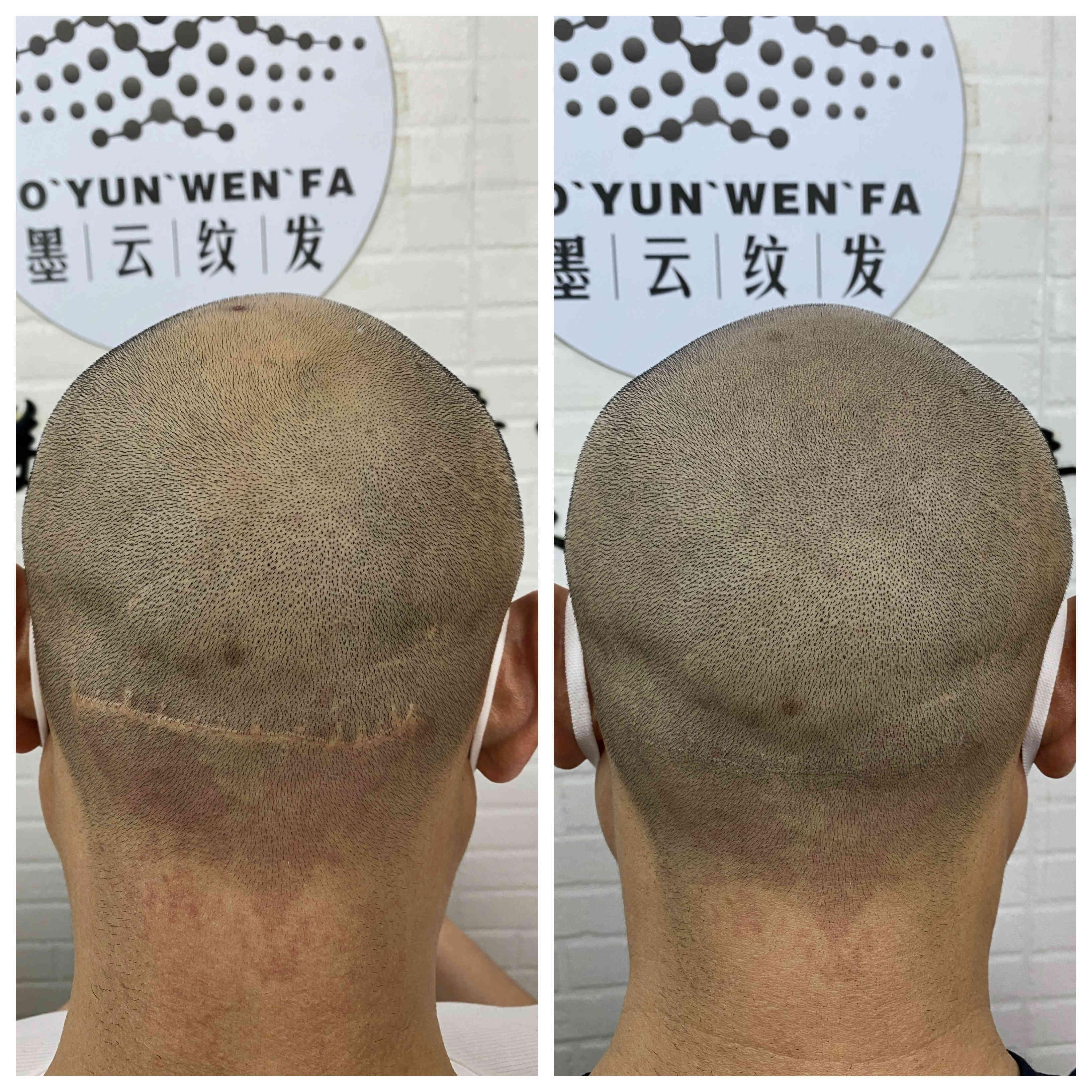 纹发好还是植发好联系方式