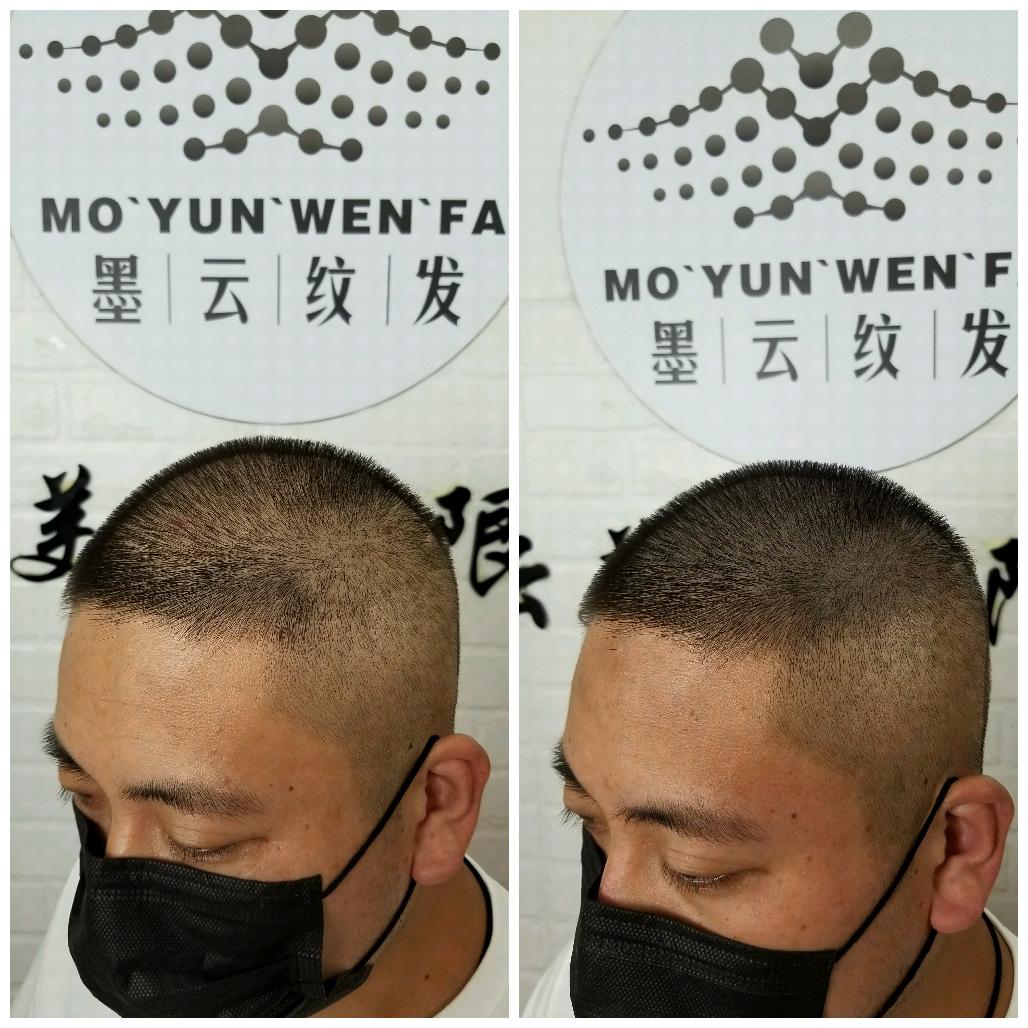 纹发好还是植发好哪里有