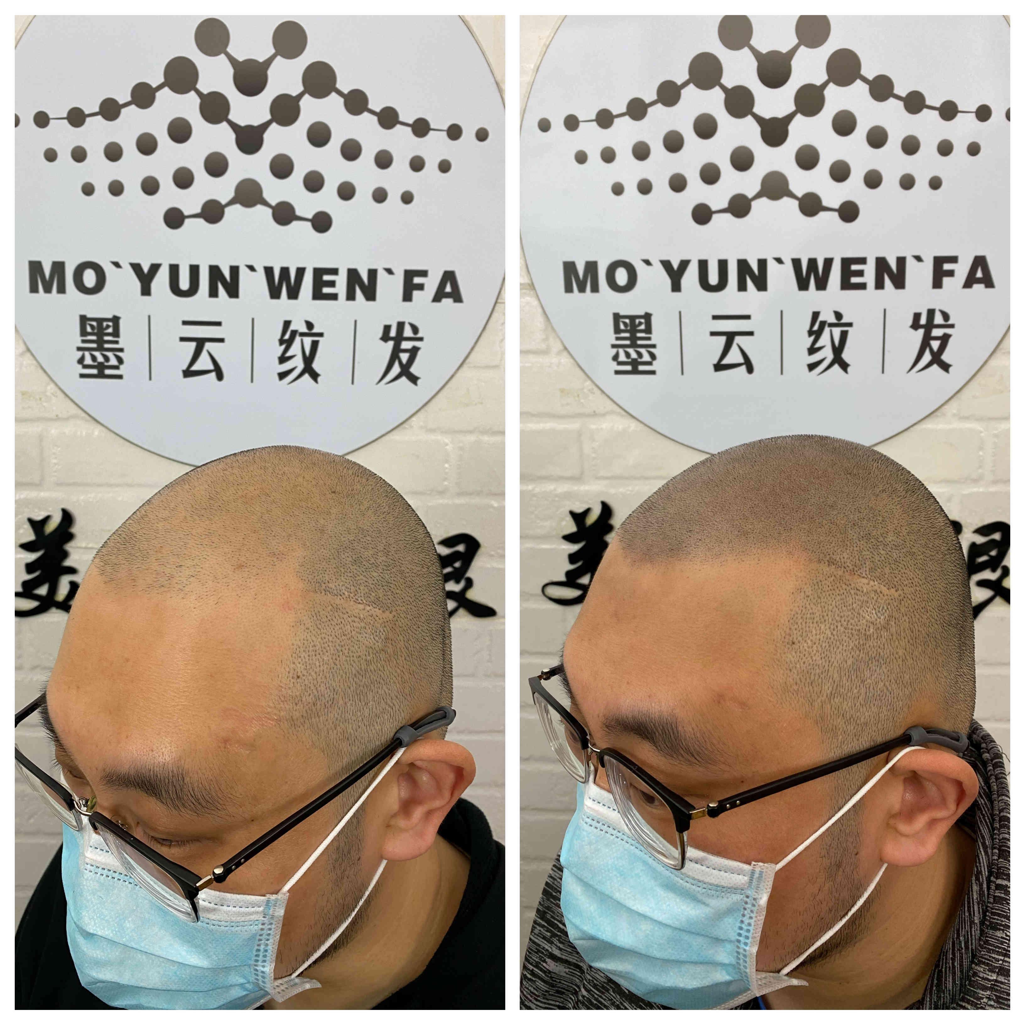 纹发好还是植发好哪家强